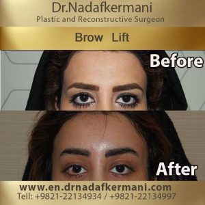 browlift-1