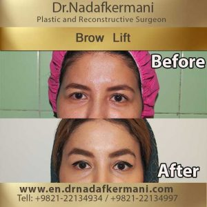 browlift-2