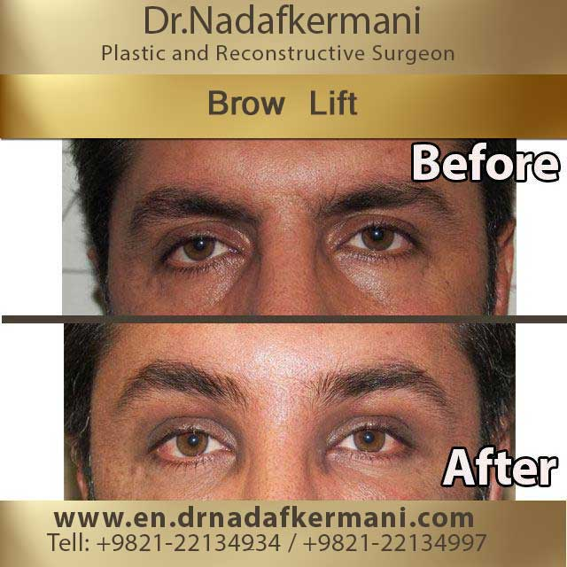 browlift-3