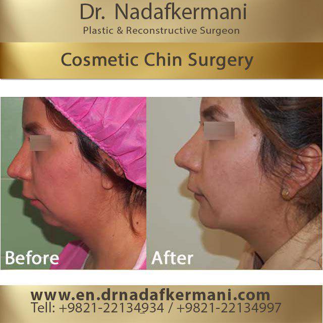 Cosmetic chin Surgery