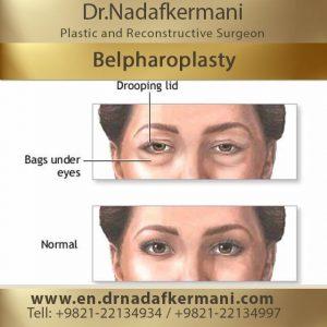belpharoplasty