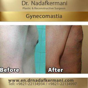 gynecomestia