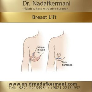 benefits of a breast lift